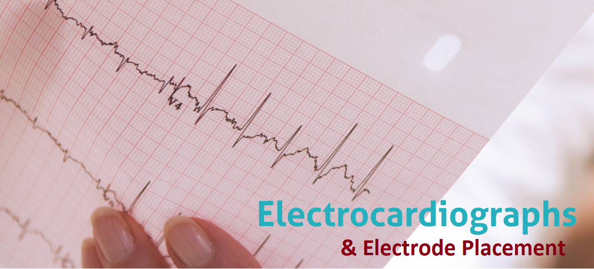12-channel ECG lead placement