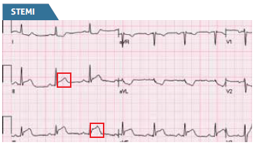 Diagnosing STEMI - Glasgow